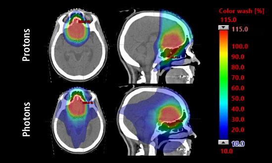 X-rays of proton therapy