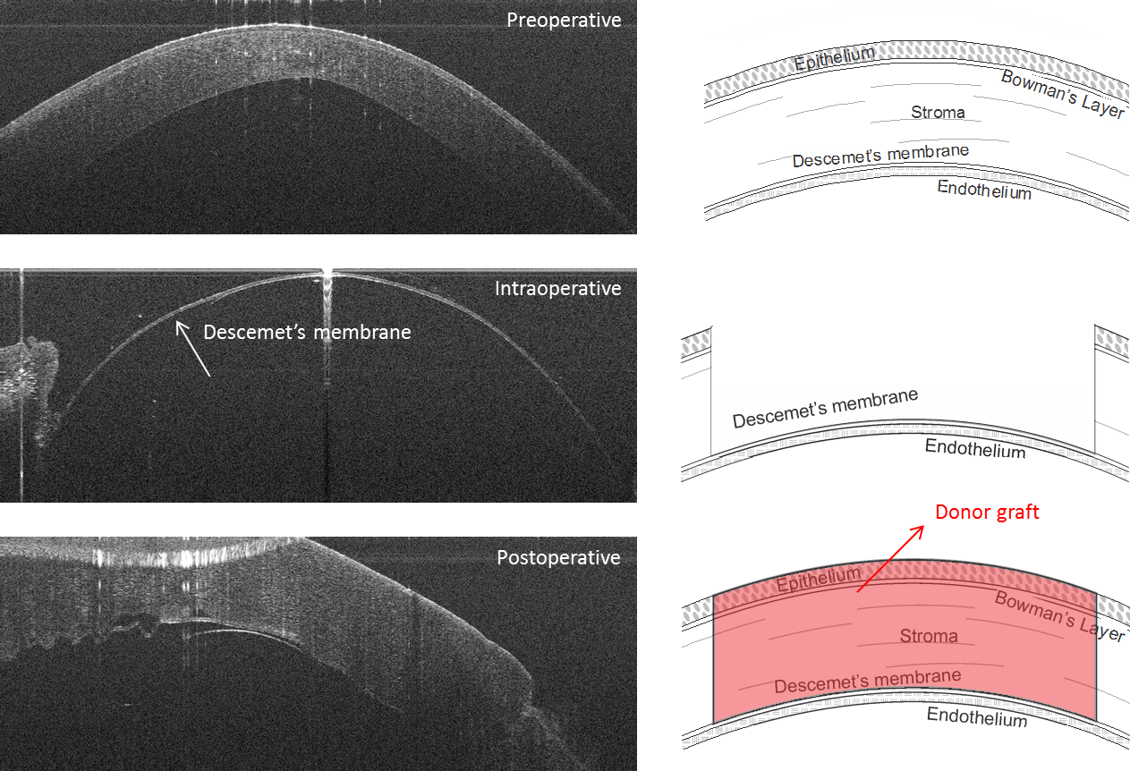 OCT guided dissection of the anterior cornea of a keratoconic eye during a DALK