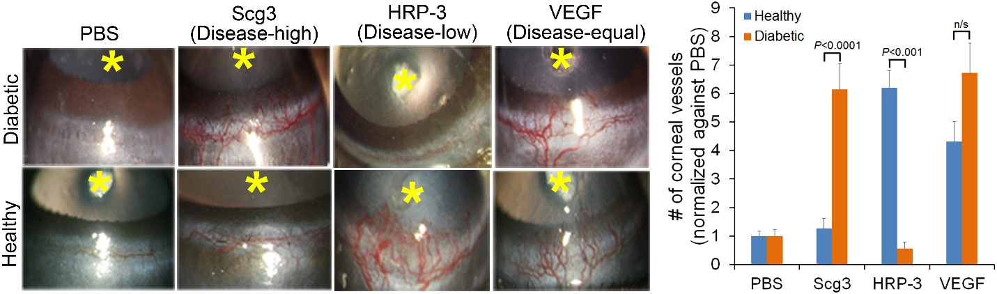 Diabetes-high Scg3 induces corneal angiogenesis in diabetic but not normal experimental models